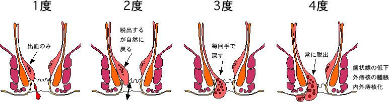 ゴリガー分類 いぼ痔の分類