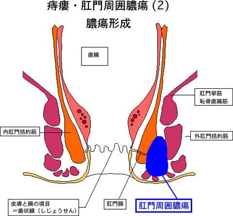 痔瘻2膿瘍形成