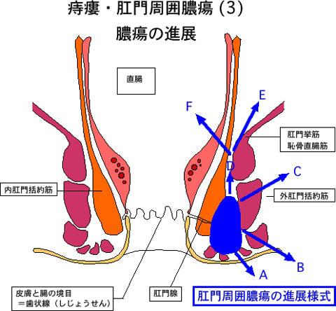 痔瘻3膿瘍の進展