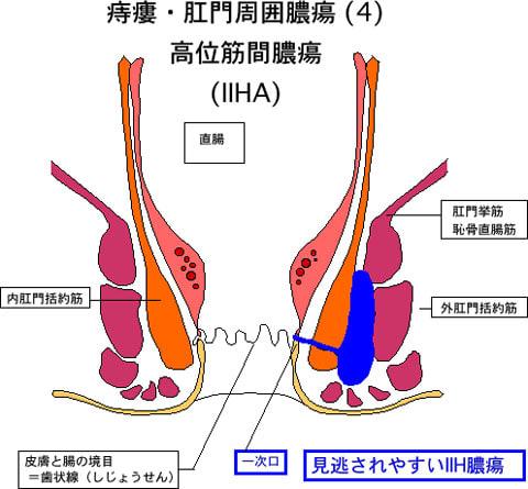 痔瘻4高位筋間膿瘍