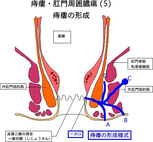 痔瘻5痔瘻の形成