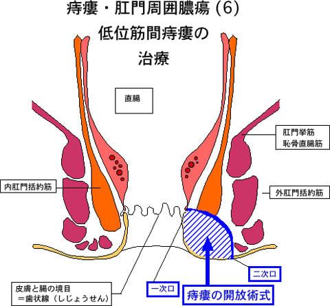 痔瘻開放術式断面図